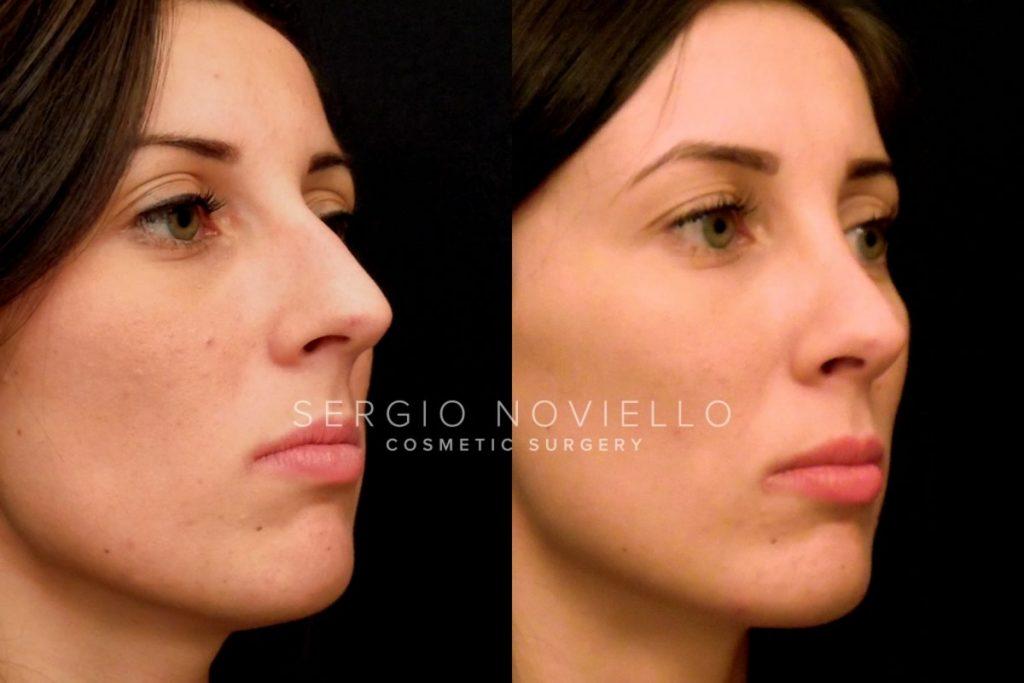 Rinoplastica: foto prima e dopo