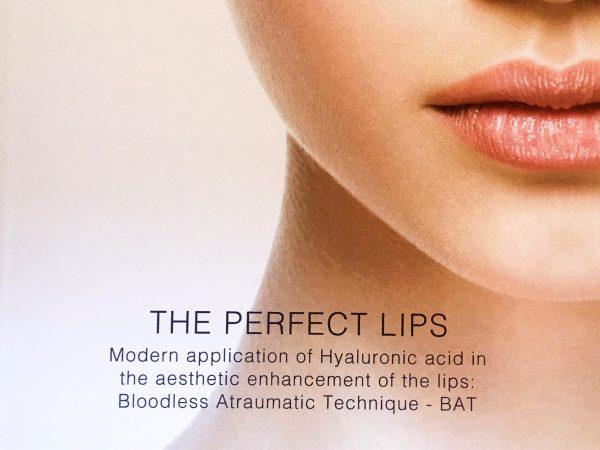 The Perfect Lips: acido ialuronico per labbra con tecnica BAT